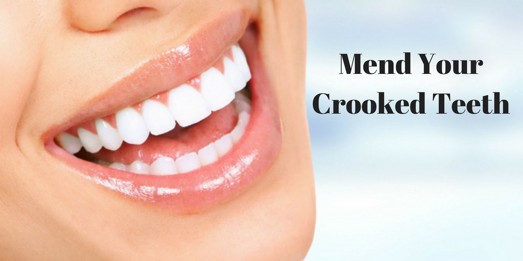Treatment to Mend Your Crooked Teeth