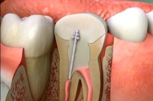 Precautions After Root Canal Treatment