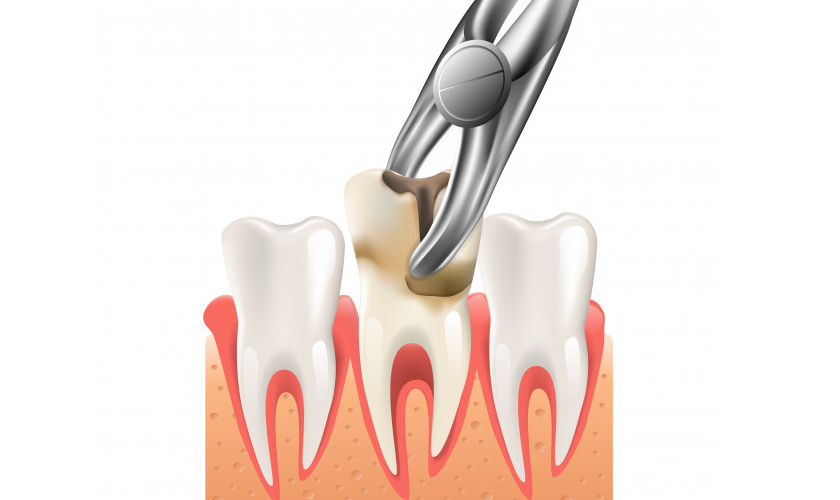 Tooth Extraction - Advanced Family Dentistry